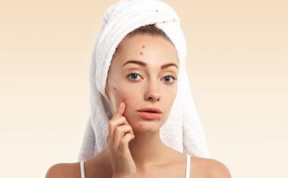 piel grasa acneica, jenue linea parfait